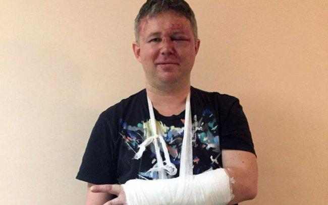 Динар Идрисов после нападения // Фото: facebook.com