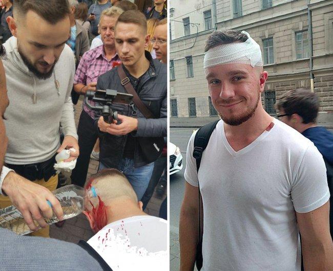Владимир Осипов после столкновения с полицией // Фото: Сергей Сатановский и @apologia