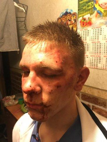 Вадим Коваль сразу после избиения