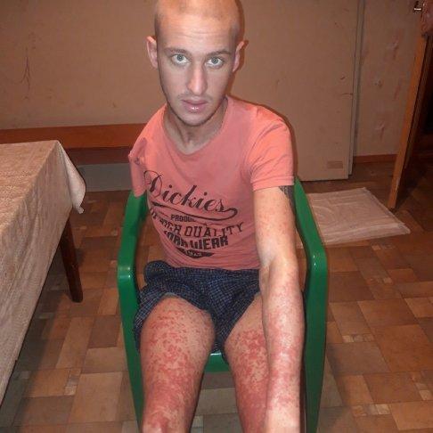 Без вориконазола Кирилл начинал покрываться сыпью и задыхаться. Фото из личного архива
